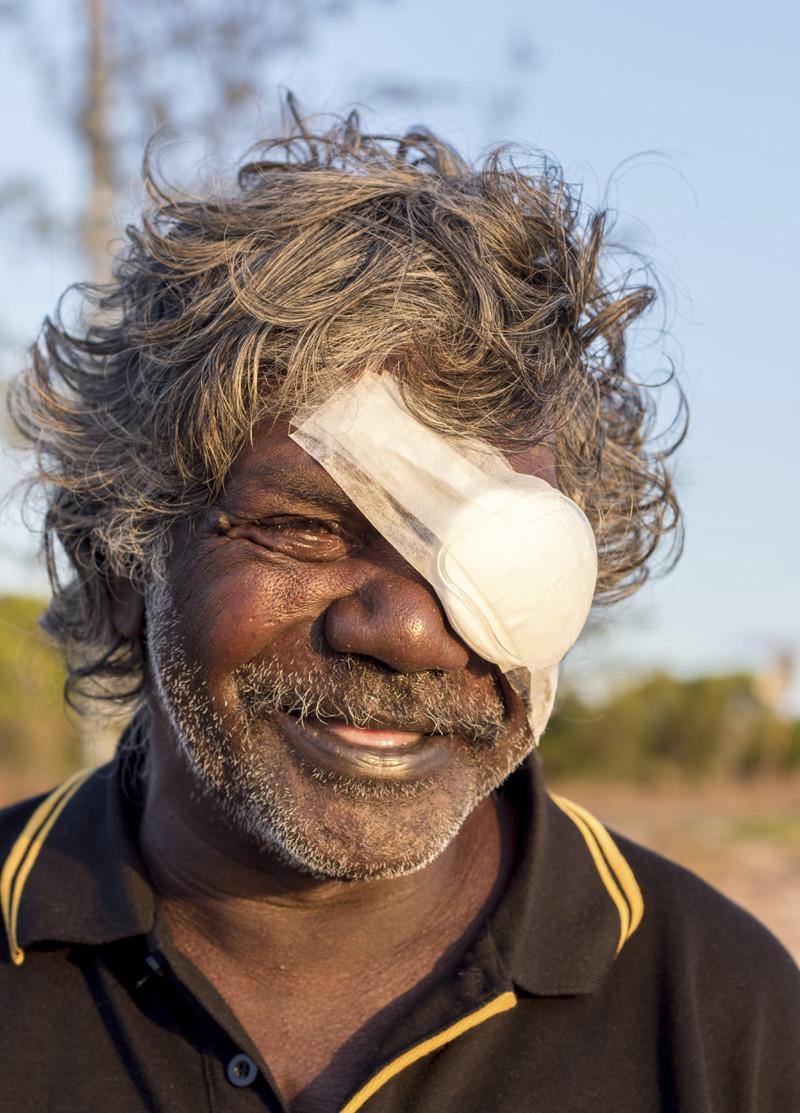 患有白內障的彼德,在手術後展露笑容。