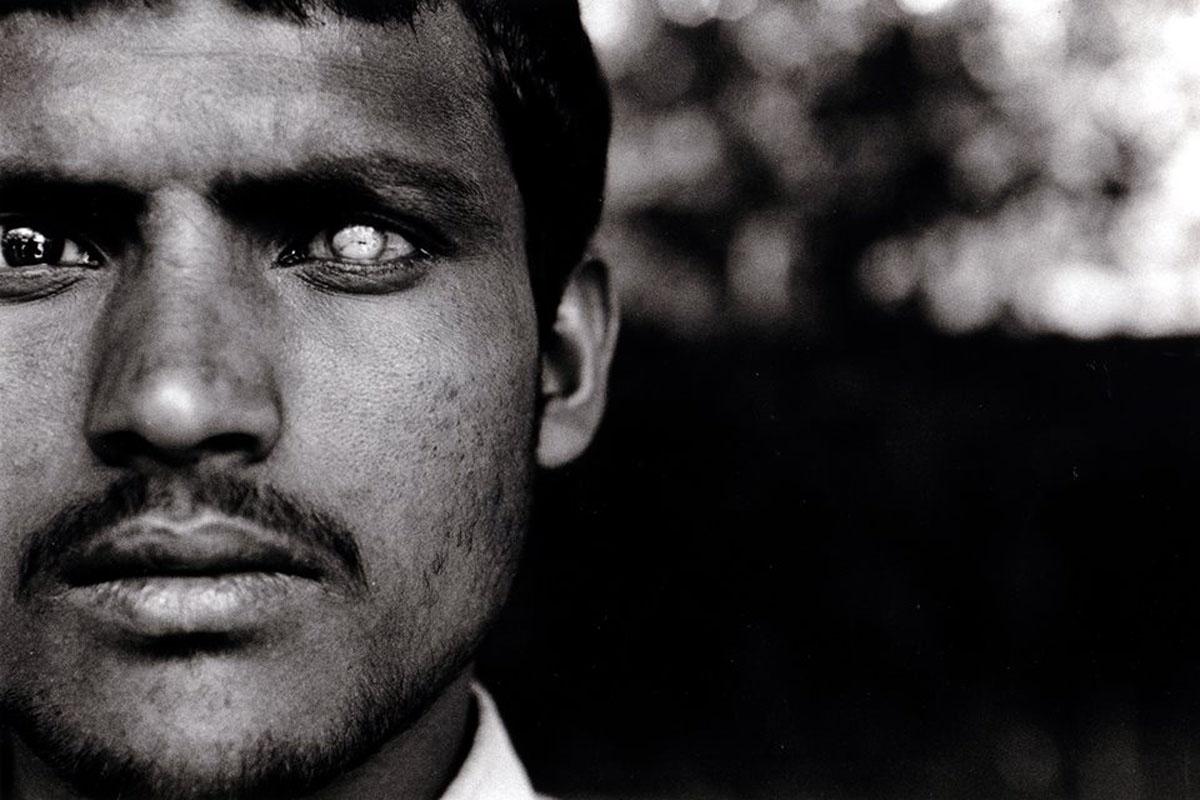 印度教相信去世時屍體必須完整,故器官捐贈風氣並不熱烈。可是眼角膜受損是尼泊爾最嚴重的眼疾之一。
