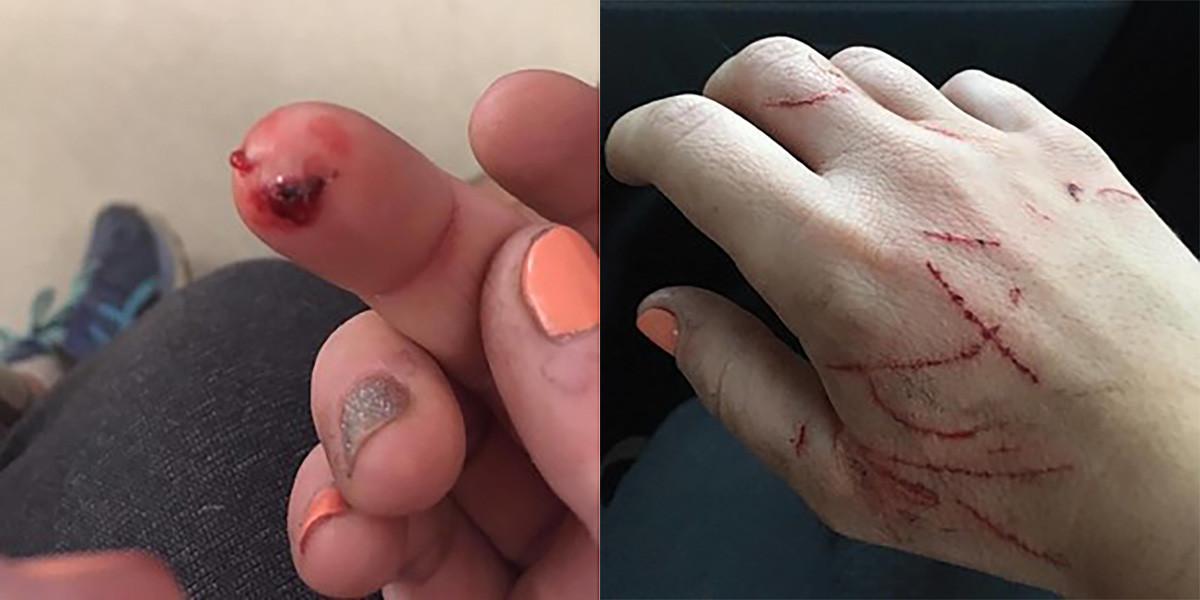 狗主 Kyla Grover 手上的貓抓傷。圖片來源:Kyla Grover / Buzzfeed