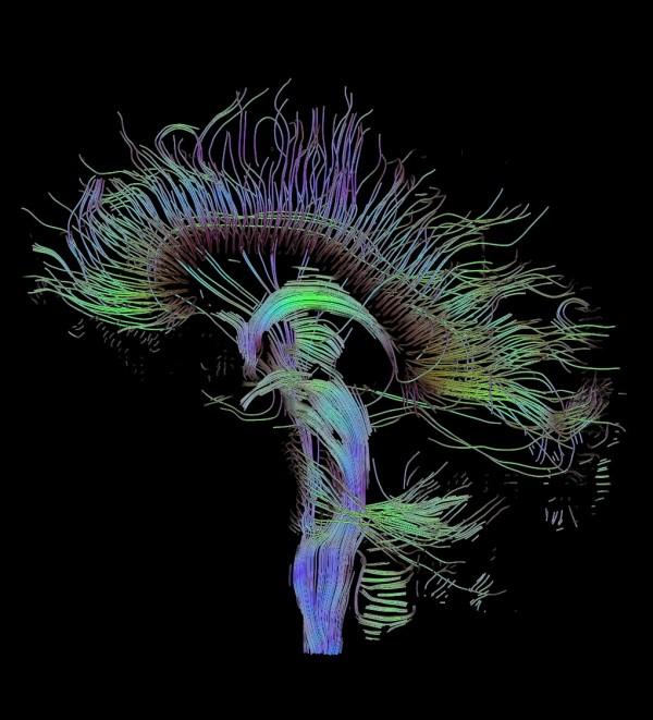 大腦的神經路徑負責管理情緒,與粗口關連比語言區域更密切。 圖片來源:維基百科