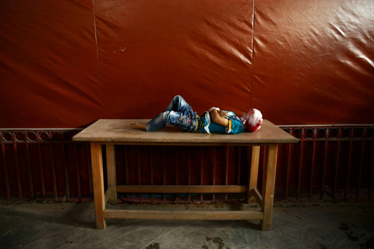 10 月 24 日,敘利亞小鎮 Douma,11 歲的 Mahmoud Barakeh 經過炮火洗禮後,被安置在桌上,等候埋葬。